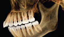 Dental X-ray Offers